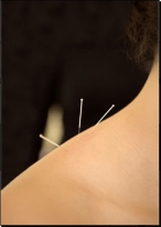 Traditional Acupuncture Treatments